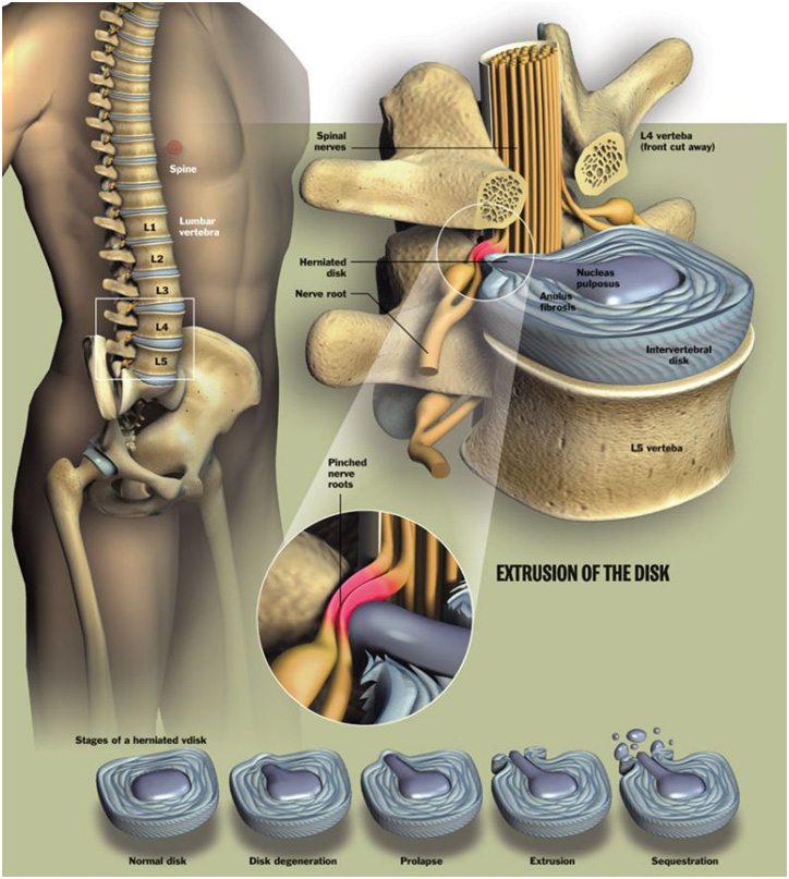Lumbar Disc Bulge vs. Lumbar Disc Herniation vs. Lumbar Disc Extrusion vs. Low Back Degenerative Disc Disease (DDD)